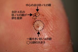 足の親指の皮下に入ったスナノミ(黒い点)とその卵(その周りの白い塊)©西原恵美子